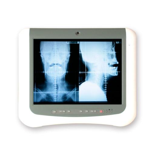 Panel PC: M1526 15″ Medizinische Medical Station EmCore Intel Atom N270